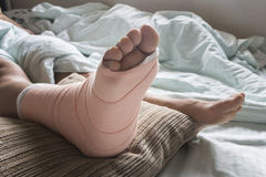 Foot soft splint for treatment of injuries Royalty Free Stock Photo