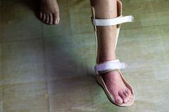 Foot splint for treatment royalty free stock photo