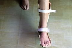 Foot splint for treatment royalty free stock images