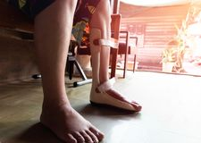 Foot splint for treatment stock photography