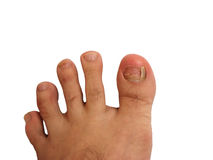 Foot Without Toe Nail. And bruise on nails Stock Image