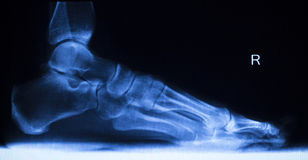 Foot and toes injury x-ray scan. Orthopedics and Traumatology radiology load bearing test results photo Stock Photography