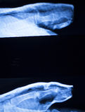 Foot and toes injury x-ray scan. Orthopedics and Traumatology radiology test results photo Royalty Free Stock Photography