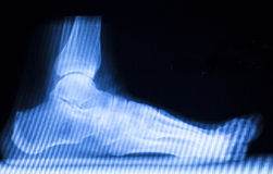 Foot and toes injury x-ray scan Stock Photos