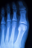 Foot and toes injury x-ray scan Stock Image