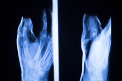 Foot and toes injury x-ray scan Royalty Free Stock Images