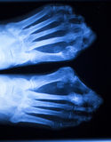 Foot and toes injury x-ray scan Stock Photo