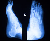 Foot and toes injury x-ray scan Royalty Free Stock Photography