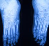 Foot and toes injury x-ray scan Royalty Free Stock Image