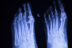 Foot and toes injury xray scan Royalty Free Stock Images