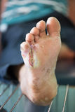 Foot ulcers from diabetes. Infected stock photo