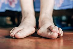 Foot which have bunion hallux valgus problem on floor stock images