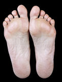 Foot of an woman with calluses Royalty Free Stock Photography