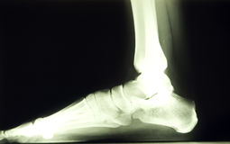 Foot x ray Royalty Free Stock Image