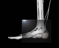Foot X-ray Stock Photos