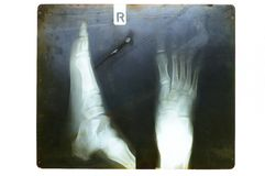 Foot on x-ray film Stock Image