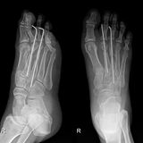 Foot X-Ray Royalty Free Stock Image