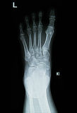 Foot x-rays image Royalty Free Stock Image