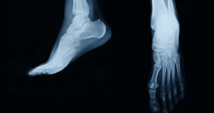 Foot xray. Collage top and side view stock photo