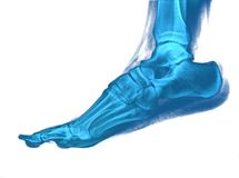 Foot xray. Image film bone x-ray roentgen Royalty Free Stock Image