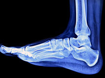 Foot Xray. Xray Image of Left Foot from Side View Royalty Free Stock Photos