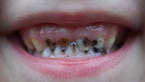 Footage caries on the teeth of the child stock video footage