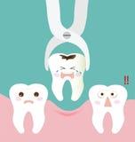 Forceps et dent dentaires d'extraction Photo libre de droits