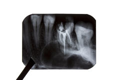 The forceps is holding an x-ray of teeth. Isolated on white background Royalty Free Stock Photography