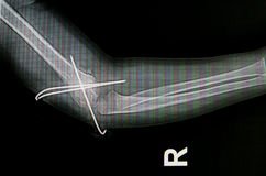 Forearm x-rays image Royalty Free Stock Images