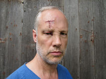 Forehead Scar. An unshaven man with a T shaped wound on his forehead stock photo