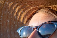 Forehead of a woman with freckles in direct sunlight, close-up view. UV protection, sun radiation concept: skin with lentigo in royalty free stock photo
