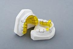 foremka stomatologiczny tynk obraz royalty free