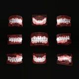 Foreshortening teeth. Royalty Free Stock Photos