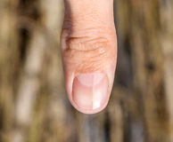 Forked nail on the thumb. Dilation of the nail, traumatic pathology. The nail is divided in half Stock Image