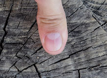 Forked nail on the thumb. Dilation of the nail, traumatic pathology. The nail is divided in half Stock Images