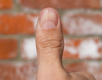 Forked nail on the thumb. Dilation of the nail, traumatic pathology. The nail is divided in half Royalty Free Stock Photography