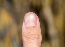 Forked nail on the thumb. Dilation of the nail, traumatic pathology. The nail is divided in half Stock Photo