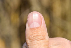 Forked nail on the thumb. Dilation of the nail, traumatic pathology. The nail is divided in half Royalty Free Stock Image