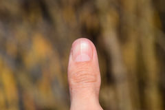 Forked nail on the thumb. Dilation of the nail, traumatic pathology. The nail is divided in half Stock Photos