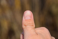 Forked nail on the thumb. Dilation of the nail, traumatic pathology. The nail is divided in half Royalty Free Stock Photos