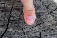 Forked nail on the thumb. Dilation of the nail, traumatic pathology. The nail is divided in half Royalty Free Stock Photo
