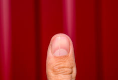 Forked nail on the thumb. Dilation of the nail, traumatic pathology. The nail is divided in half Royalty Free Stock Images