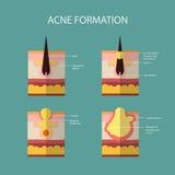 Formación de acné o de espinilla de la piel El sebo en Foto de archivo