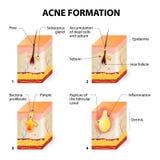 Formación del acné Imagen de archivo
