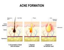 Formación del acné Piel humana Foto de archivo libre de regalías