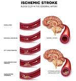 Formación del coágulo de sangre en la arteria cerebral ilustración del vector