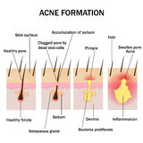 Formation of acne. Illustration of acne formation on the human skin Royalty Free Stock Photos