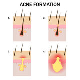 Formation of acne. Stages of acne formation on the human skin Stock Image