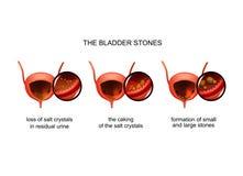 Formation of bladder stones royalty free illustration