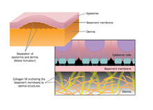Formation of a blister. Drawing of blister formation in skin disease such as Epidermolysis bullosa, where the epidermis separates from the basement membrane and Royalty Free Stock Photography